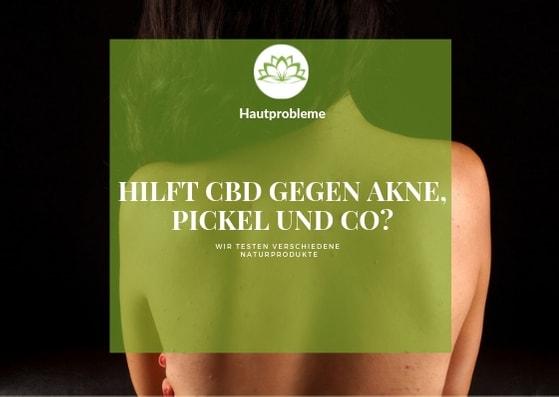 Wie hilft CBD der Haut?
